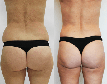 liposuction before and after - image 03 back view