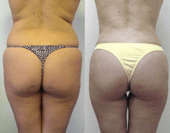 liposuction before and after - real patient of Dr Rastogi - image 04 - back view