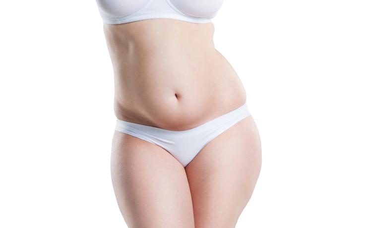 mini tummy tuck model 01